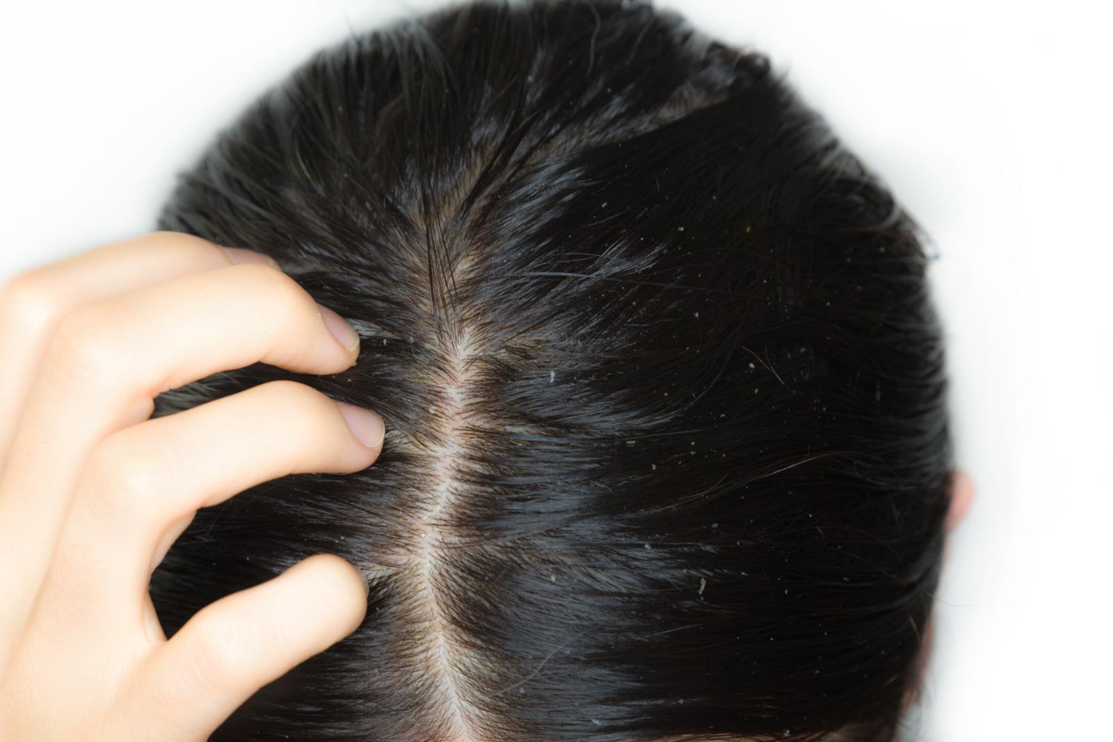Sprawdzone sposoby na tłuste włosy